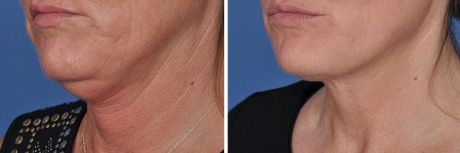ThermiSmooth Face Skin Tightening - Salt Lake City, UT