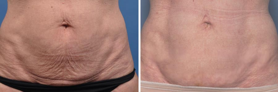 ThermiTight Body Skin Tightening - Salt Lake City, UT