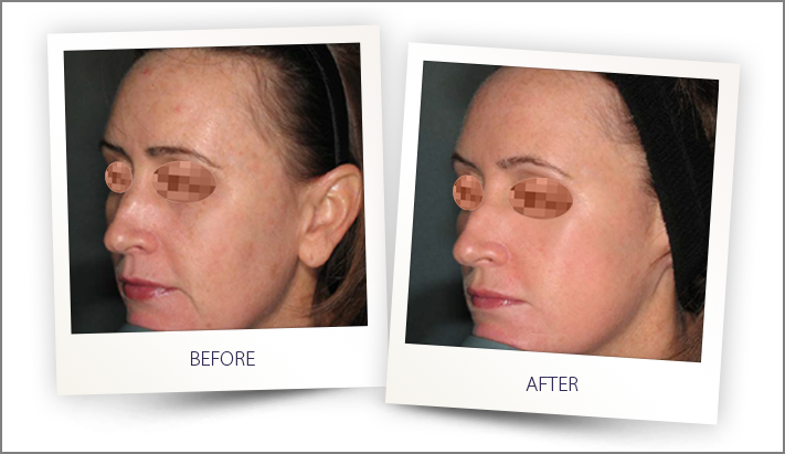 IPL Photofacial Salt Lake City