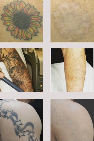 Laser Tattoo Removal Salt Lake City Silkey Skin Md
